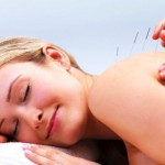10 Questions and Answers about Acupuncture for Weight Loss